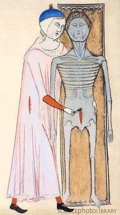 """Вскрытие. Из трактата """"Анатомия"""" Гуидо де Виджевано, 1345 г."""