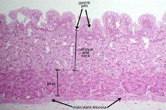 Normal fundic mucosa