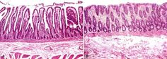 Normal vs. ischemic colitis. The classic histologic features of (early) ischemia are present in this image: surface-predominant changes including shrunken (microcystic) crypts lined by flattened, goblet cell-deficient epithelium, eosinophilic lamina propria with relatively little inflammation, and necrosis of surface epithelium
