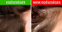 Male pattern baldness can influence the two people. A few men probably won't c… – dandruff shampoo Home Remedies For Hemorrhoids, Eczema Remedies, Hair A, Your Hair, Seborrhoische Dermatitis, Hair Dandruff, Greasy Hair Hairstyles, Male Pattern Baldness, Regrow Hair