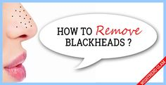 HOW TO REMOVE BLACKHEADS ON YOUR NOSE EFFECTIVELY.