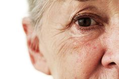 Warning: What Your Wrinkles Say About Your Health