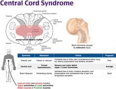 njury to the central cord commonly occurs after a fall or motor vehicle collision where there is hyperextension at the neck. The syndrome presents with bilateral motor paresis. Sensory impairment may be present as well. The upper extremities are affected more often and to a greater degree than the lower extremities. Additionally, distal muscle groups are more affected than proximal ones. Bladder dysfunction and burning dysethesias may also be present.