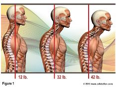 Why Your Neck Hurts - the head weighs about 12 lbs on the spine when in proper alignment. They weight increases on the spine the more forward your head is on the spine. Massage therapy can help.