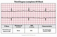 There is complete heart block that none of the impulses from above are conducted to the ventricles The atria & the ventricles are controlled independently by separate pacemakers P Waves are NOT married to QRS The level of complete block is High, when AV node takes control of ventricles. QRS will therefore be narrow & junctional rate is between 40-60. If level of block is Low, a ventricular pacemaker will control the ventricles. QRS will therefore be wide & rate is slower.