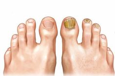Difference Between Normal And Effected Toenails Clear Nails plus is the best solution for toenail fungus that works efficiently on ugly and yellowish nails; Advanced formula with strong research for healthy cuticles. What Causes Toenail Fungus, Toenail Fungus Remedies, Toenail Fungus Treatment, Nail Treatment, Arthritis, Infection Fongique, Uv Gel Nagellack, Nails Plus, Home Remedies