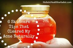 6 Skincare Tips That Cleared My Acne Naturally - Holistic Health Herbalist
