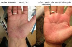 Psoriasis 2 weeks later!