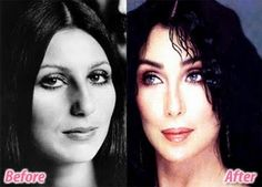 Fresh Pics: Celebrities Before and After Plastic Surgery Cher - why do they all remove their noses?