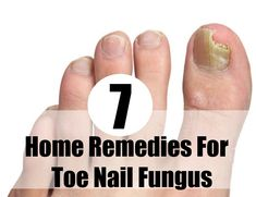 7 Home Remedies For Toe Nail Fungus