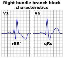 Right bundle branch block - ECG characteristics of a typical RBBB showing wide QRS complexes with a terminal R wave in lead V1 and slurred S wave in lead V6.