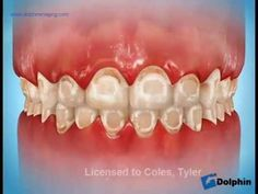 how orthodontic rubber bands work this is an example of a way premier orthodontics brushing and flossing instructions with braces solutioingenieria Images