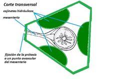 Esfinter protesico para colostomia