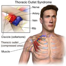 Thoracic outlet syndrome - Wikipedia, the free encyclopedia