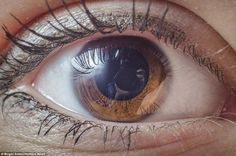 This eye has a very distinctive crater-like pattern inside the iris, which surrounds an unusually large pupil