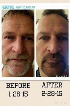 Guys in the know use Rodan + Fields skincare! There's a regimen for every skin concern, including shaving irritation. Click through for more info!