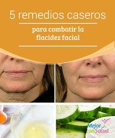 5 remedios caseros para combatir la flacidez facial   Te compartimos los mejores remedios caseros para combatir la flacidez facial y otras imperfecciones derivadas. ¡No dejes de probarlos!