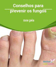 Conselhos para #prevenir os fungos nos #pés Os #fungos nas #unhas dos pés são umas das #doenças mais comuns e que geralmente as pessoas não prestam muita atenção até o fungo estar completamente...