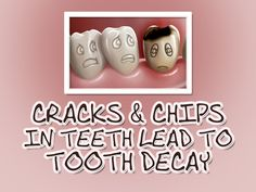 Cracks and chips in teeth create a home for bacteria grow and create decay. Since your toothbrush cannot clean in those cracks, it is important to have those areas filled by your dentist.