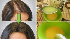 Beauty Care, Beauty Hacks, Hair Beauty, Beauty Tips, Beauty Ideas, Hair Loss Causes, Hair Loss Remedies, Tips Belleza, Grow Hair