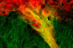 Our Parkinson's Place: Newly discovered neural connections may be linked ...