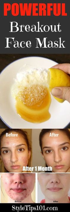 Blemish Fighting Face Mask for Acne & Blackheads. Diy Face Mask For Blackheads Homemade Face Masks, Homemade Skin Care, Diy Skin Care, Skin Care Tips, Homemade Toner, Skin Care Masks, Face Scrub Homemade, Acne Skin, Acne Scars