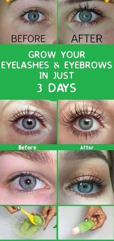Grow your eyelashes & eyebrows in just 3 days, Eyelash And Eyebrow serum #remedy #eyebrows #eyelashes #hairgrowth #homeremedies