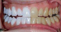 Il mélange 2 ingrédients et les met sur ses dents. Résultats incroyables ! | Santé+ Magazine - Le magazine de la santé naturelle