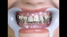 Como funciona o aparelho nos dentes