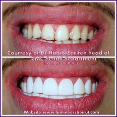 Hollywood smile Lebanon Beirut Prepless veneers Lumineers by Cerinate Call us now +96170578444 http://www.Ferraridentalclinic.com