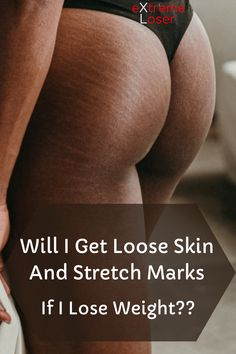 Will I Get Loose Skin And Stretch Marks If I Lose Weight Get Loose, 200 Pounds, Lose Weight, Weight Loss, Loose Skin, Stretch Marks, Losing Me, Lost, Losing Weight