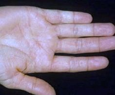 Causes Of Psoriasis And  Psoriasis Remedies