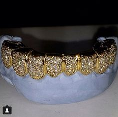 Glitter in your mouth Gold Slugs, Diamond Grillz, Tooth Gem, Grills Teeth, Gold Grill, Glitter Make Up, Gold Teeth, Luxury Jewelry, Swagg