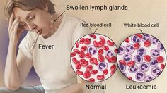 Best Hospital for Blood Cancer Treatment in India