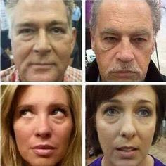 Decoding the Active Ingredient List for Jeunesse Instantly Ageless Under Eye Bags, Oxidative Stress, Eye Contour, Summer Beauty, Active Ingredient, Beauty Trends, Serum, Anti Aging, Instagram