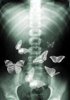 love photography Black and White beautiful b&w skeleton stomach butterflies X ray You Give Me Butterflies, Butterflies In My Stomach, Daughter Of Smoke And Bone, Photocollage, Hopeless Romantic, True Love, Make Me Smile, Images, Give It To Me