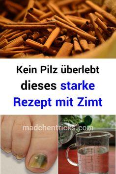 Kein Pilz überlebt dieses starke Rezept mit Zimt  #Rezept #Zimt Almond, Food, Nail Fungus, Honey, Mushrooms, Recipies, Essen, Almond Joy, Meals