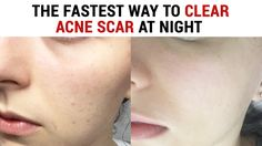 The Most Effective Night Care Routine to Clear Acne Scars