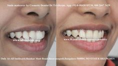 #Smilemakeovers by expert cosmetic dentist Dr Trivikram rao(Dr Vikram) in Bangalore.  Sculpting a better smile by changing the alignment, shape, color and texture of your existing teeth by modifying them with the help of ceramic/porcelain crowns/veneers. To know more visit: http://www.allsmilesdc.org/cosmetic-dentistry/ #cosmeticdentistry   #Bangalore