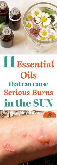 Going out in the sun? There's some essential oils you should absolutely leave home to avoid serious sunburns - do you know what these 11 essential oils are?