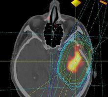 microRNAs help to predict disease progression in brain tumors http://www.sciencetotal.com/news/2016-06-micrornas-help-to-predict-disease-progression-in-brain-tumors/