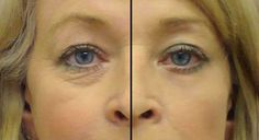 Read and learn how to make a recipe for wrinkles around the eyes.