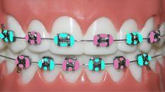 Teeth Braces Cost, Braces Bands, Kids Braces, Dental Braces, Braces Problems, Braces Retainer, Cute Braces Colors, Getting Braces, Braces Tips