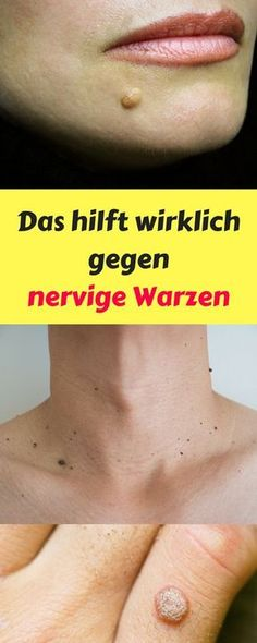 Warts - 10 Ways to Get Rid of Them Naturally - - Away # Naturally . - Warzen – 10 Wege sie natürlich loszuwerden – – Warts – 10 Ways to Get Rid of Them Naturally – – Rid Of # Naturally Warts On Face, Warts Remedy, Skin Tag, Healthy Lifestyle Tips, Sciatica, Facon, Face Care, Home Remedies, How To Lose Weight Fast