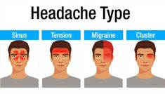 Diagnose Headache Types From Chart To Treat Remes Causes Clinic