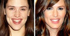 Celebrity Jennifer Garner before and after plastic surgery images, Rhinoplasty - nose job Lips augmentation filler collagen injections, celeb nosejob & gum surgery