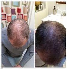 Asami anticaida del cabello