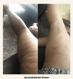 """""""The FasciaBlaster has been a Godsend. I am so happy I found the FasciaBlaster and I will be a forever blaster! In fact, I love it so much that I became an affiliate and want to begin to share my journey to health using these tools."""" Start YOUR FasciaBlasting journey today! I Am Happy, Journey, Facts, Tools, Health, Im Happy, Instruments, Health Care, The Journey"""