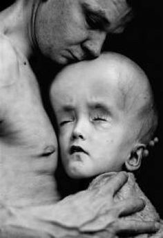 A small child with severe birth defects from radiation exposure.   Source: Paul Fusco