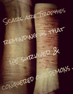 It makes me so sad when I see people's scars...I know what its like and its not fun. Its Hell...and I hope for anyone going through what your going through I hope it gets better and I hope you can finally stop cutting and I hope you can become unaddicted to it. I hope you grow up to be the person you've always wanted to become...but most of all I hope you finally become happy...and please dont give up even if it seems like it will never I promise you it will some times it takes a bit…